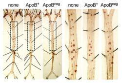 Circulation:动脉粥样硬化中的保护性CD4 T调节细胞的致病性转换
