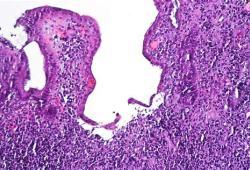 Entyvio(Vedolizumab)长期维持治疗中重度活动性溃疡性结肠炎:安全性和有效性值得肯定