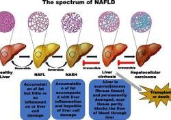 "Lanifibranor治疗NASH:<font color=""red"">FDA</font>授予""突破性疗法称号"""