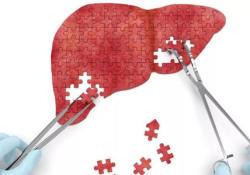 """ClinGastroenterologyH: 持续低水平的<font color=""""red"""">乙型</font><font color=""""red"""">肝炎</font><font color=""""red"""">病毒</font>仍然可促进肝纤维化进程"""
