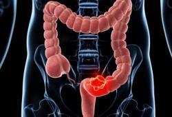 ClinGastroenterologyH: 粪便免疫化学检测阳性后结肠镜检查时间与结直肠癌结果之间的关联