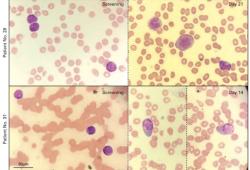 J Clin Oncol:新型LSD1抑制剂Iadademstat单一治疗复发/难治性AML初露成效