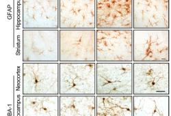 Sci Transl Med:LRRK2通过NFATc2介导突触核病的小胶质细胞神经毒性