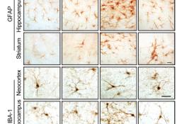 """Sci Transl Med:LRRK2通过NFATc2介导突触核病的小胶质<font color=""""red"""">细胞</font>神经<font color=""""red"""">毒性</font>"""