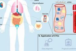 FDA即将批准液体活检技术Parsortix用于转移性乳腺癌