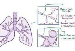 呼吸道合胞病毒(RSV)疫苗候選藥物的I / II期試驗:已取得陽性結果