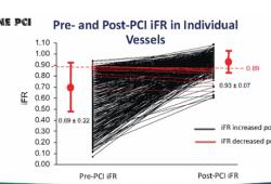 TCT 2020丨DEFINE-PCI研究:PCI术后残余缺血患者的1年结局