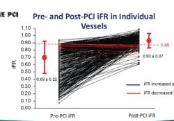 "TCT 2020丨DEFINE-<font color=""red"">PCI</font>研究:<font color=""red"">PCI</font>术后残余缺血患者的1年结局"