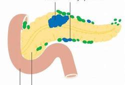 GC4419治疗晚期胰腺癌的I/II期临床试验:已取得阳性数据