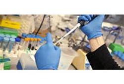 BMJ:自體調節性T細胞輸注治療對腎移植后患者免疫抑制治療的影響