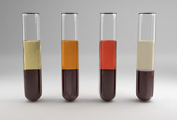 IBD: 血清二肽基肽酶4是一种新的炎症性肠病疾病活动和预后的预测指标