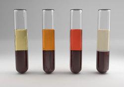 "IBD: 血清二肽基肽酶4<font color=""red"">是</font><font color=""red"">一</font><font color=""red"">种</font>新<font color=""red"">的</font>炎症性肠<font color=""red"">病</font>疾病活动和预后<font color=""red"">的</font>预测指标"