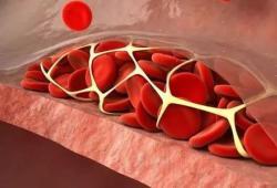 IBD: 炎症性肠病患者出院后静脉血栓栓塞的风险