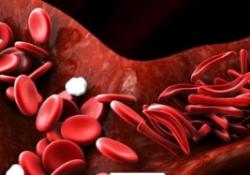 """Blood:镰状细胞病血管闭塞性危象的预后及<font color=""""red"""">生物</font><font color=""""red"""">标志</font><font color=""""red"""">物</font>评估"""