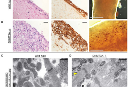 Circulation:DNMT3A介导的DNA甲基化在心肌代谢中的重要作用