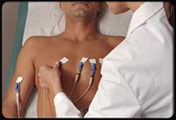 JAHA:β受体阻滞剂治疗的阻塞性睡眠呼吸暂停综合症患者的夜间心律失常和心率波动