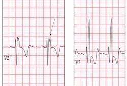 Circulation:植入ICD的法洛四联症患者的长期预后