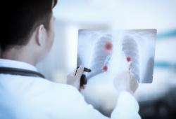 肺癌LDCT筛查和死亡率降低——证据、陷阱和未来