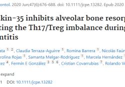 "J Clin Periodontol:研究揭示IL-35通过调节Th17/Treg<font color=""red"">失衡</font>来抑制牙周炎期间的牙槽骨吸收"