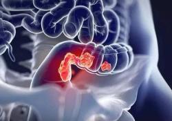 """JGastroenterology: 大肠癌原发肿瘤位置对<font color=""""red"""">预后</font>的影响"""