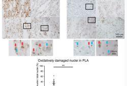Circulation:基因疗法| 抑制NADPH氧化酶2可预防房颤发生
