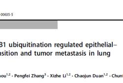 Cell Death Differ:CHIP介导CIB1泛素化调节肺腺癌的上皮-间质转化进程和肿瘤的转移