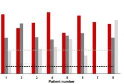 Clin Cancer Res:HR+HER2-脑转移乳腺癌患者从Abemaciclib治疗中获益最大