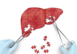 """全球<font color=""""red"""">肝癌</font>患者<font color=""""red"""">中</font>,中国人占一半!4种治疗方式,可以提高生存率"""