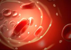 "DigDisSci:贫血严重程度与炎性肠病的<font color=""red"">医疗</font><font color=""red"">保健</font>利用率和费用增加相关"