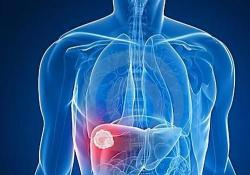 """Hepatology:<font color=""""red"""">他</font><font color=""""red"""">汀</font><font color=""""red"""">类药物</font>可以降低乙肝患者肝细胞癌的风险"""