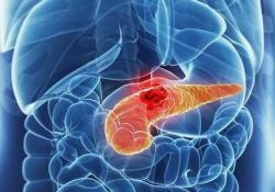 "J Gastroenterology: 保守治疗胰管内<font color=""red"">乳头</font>状黏液性肿瘤临床结果分析"