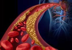 Clinical Nutrition: 地中海饮食减少了心血管高风险的患者动脉粥样硬化的形成