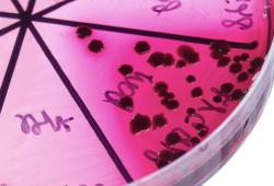 随着抗菌素耐药性加剧,默沙东的新型抗生素组合Recarbrio在英国上市