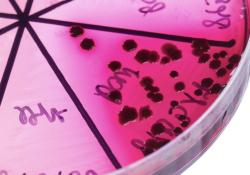 "随着抗菌素<font color=""red"">耐药</font><font color=""red"">性</font>加剧,默沙东的新型抗生素组合Recarbrio在英国上市"