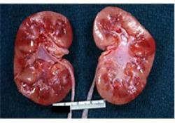 "Lancet:肾<font color=""red"">移植</font>供体供氧保存对<font color=""red"">移植</font>患者预后及肾功能的影响"