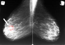 """补充<font color=""""red"""">雌激素</font>,会诱发乳腺癌?医生指出三个主要原因,跟你想的不同"""