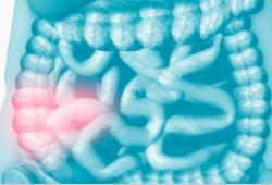 JCC: 炎性肠病患者在接受英夫利昔单抗维持治疗时可否终止氢化可的松治疗呢?