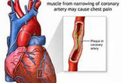 JAHA:血清脂蛋白(a)水平与冠状动脉斑块体积的关系