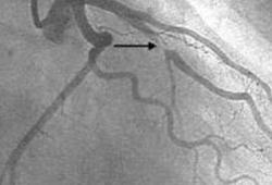 Circulation:非ST段抬高型患者心脏骤停复苏后是否需要进行早期冠状动脉造影?
