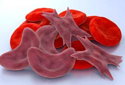 Blood:血红色可抑制SCD患者的体液B细胞反应调控同种免疫风险