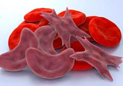 "Blood:血红色可抑制SCD患者的体液B细胞反应<font color=""red"">调控</font>同种<font color=""red"">免疫</font>风险"