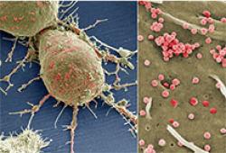 肿瘤突变负荷检测及临床应用中国专家共识(2020年版)