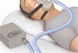 2020 ASA立场声明:阻塞性睡眠呼吸暂停的手术治疗