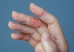 EADV 2020:JAK抑制剂Baricitinib治疗湿疹,展现长期疗效和安全性