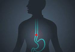 "ClinGastroenterologyH: 性激素水平与<font color=""red"">食管</font>腺癌和巴雷特<font color=""red"">食管</font>风险之间的关系"