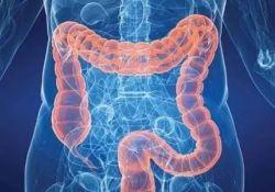 "IBD: <font color=""red"">生物</font>和小<font color=""red"">分子</font>双重疗法在治疗难治性小儿炎症性肠病中的作用"