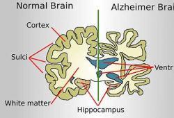 FDA顾问小组不支持阿尔茨海默氏病药物aducanumab