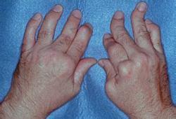 TREMFYA(guselkumab)治疗成人银屑病关节炎:显著减少了疲劳症状