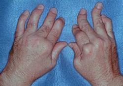"TREMFYA(guselkumab)治疗成人银屑病<font color=""red"">关节</font><font color=""red"">炎</font>:显著减少了疲劳<font color=""red"">症状</font>"
