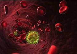 """DCR:<font color=""""red"""">CD</font><font color=""""red"""">4</font>/<font color=""""red"""">CD</font>8比值可以作为HIV 阳性患者高级别肛门异型增生和肛门癌风险的新标志物"""